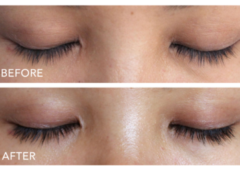 RAPIDLASH Eyelash & Eyebrow Enhancing Serum Review