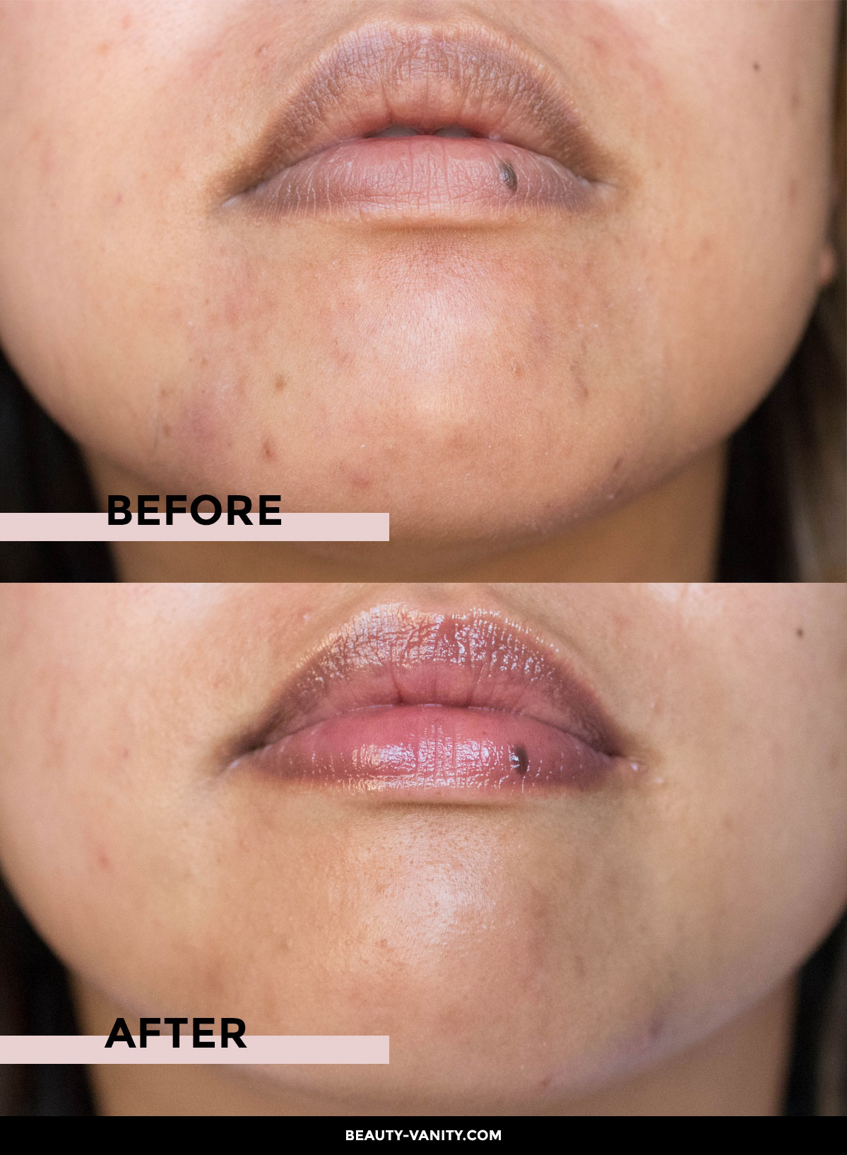 Before After Vitalize Peel | The Beauty Vanity