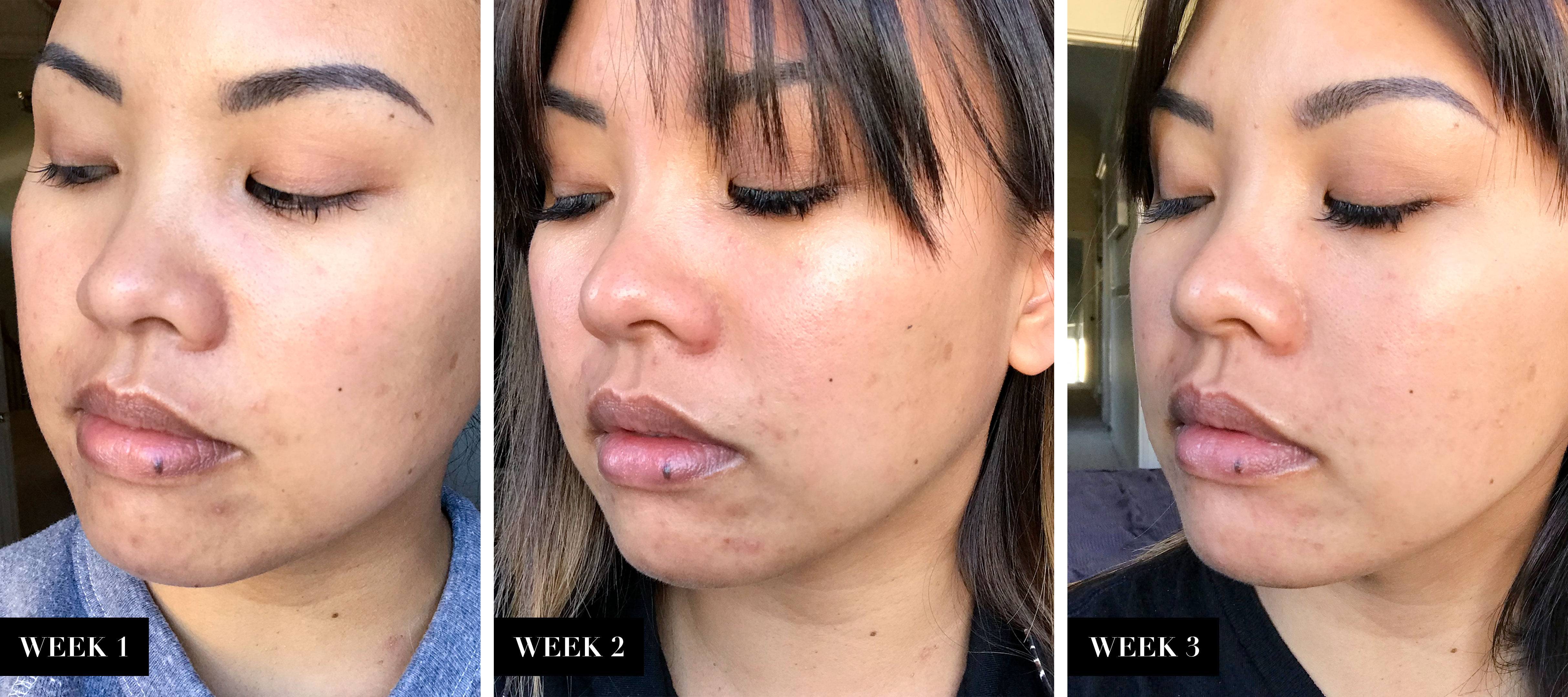 BioClarity Before After | The Beauty Review | The Beauty Vanity